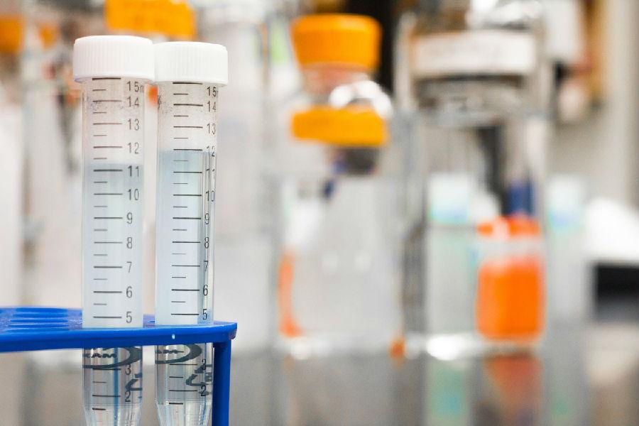 我国科学家发现了可抑制HIV扩散的蛋白质.png