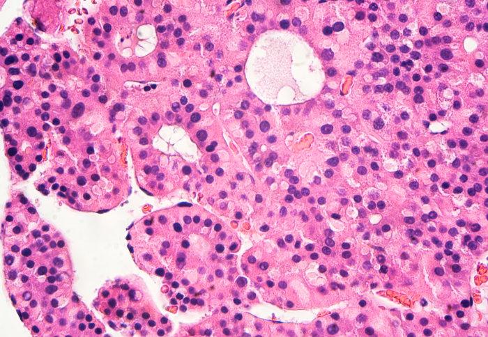 liver cells
