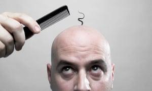 科学家即将找到治疗秃顶的方法.jpg