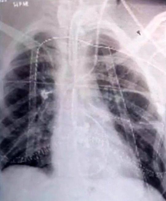 美国少年吸电子烟致肺损伤接受双肺移植.jpeg